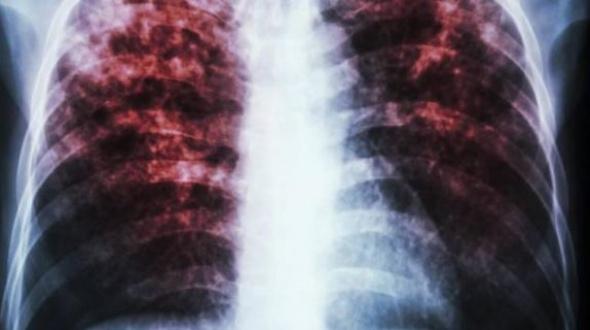 Tuberculosis, las cifras nacionales continúan en aumento